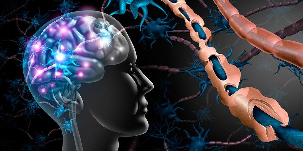 interruptor molecular para reparar el daño neurológico en la Esclerosis Múltiple
